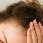 Haarausfall dauerhaft stoppen – Ursachen und Behandlung