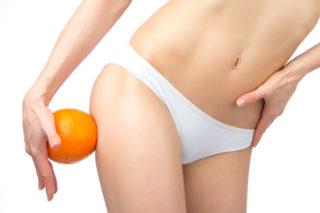 Was taugen Anti-Cellulite Behandlungen?